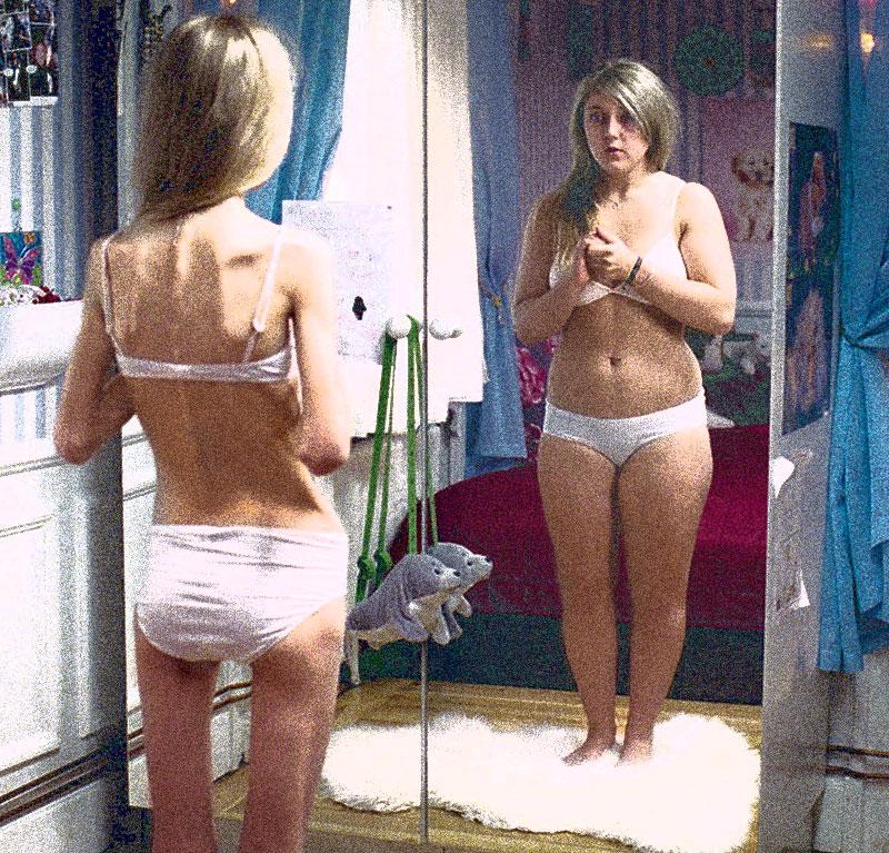 La anorexia y la bulimia son consideradas como estilos de vida por ciertos grupos sociales. Crédito: http://www.centrometeoitaliano.it/