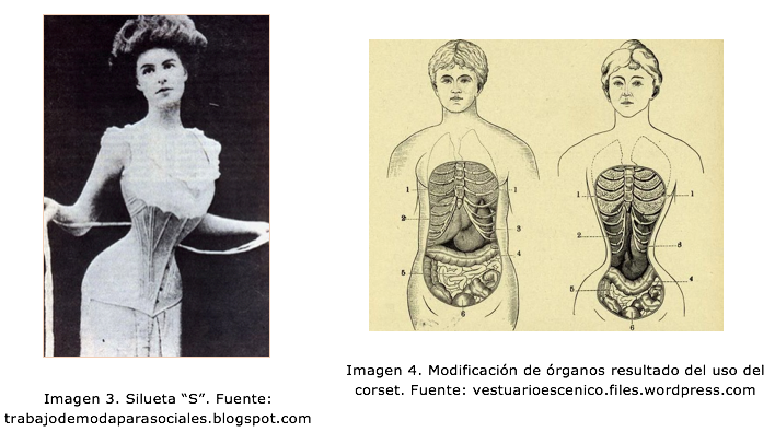 """Imagen 3. Silueta """"S"""" e Imagen 4. Modificación de órganos por corset"""